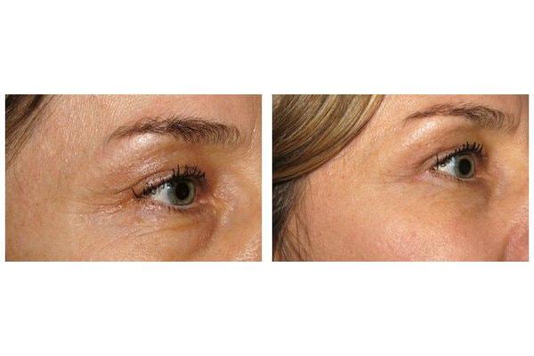 Beispiel einer Unterlidkorrektur, des Tränensack und einer Augenringkorrektur