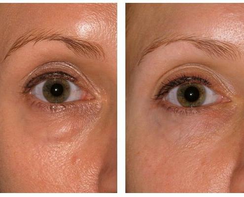 Unterlidstraffung, Korrektur der Tränensäcke und Augenringe