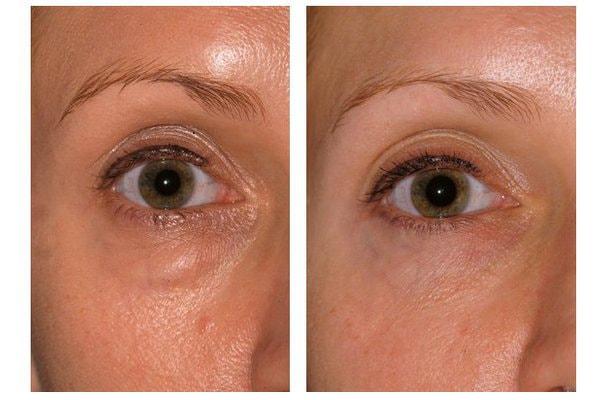 Beispiel einer Lidstraffung mit Unterlidstraffung und Entfernung der Tränensäcke und Augenringe