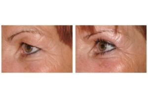 Oberlidstraffung und seitliche Augenbrauenhebung