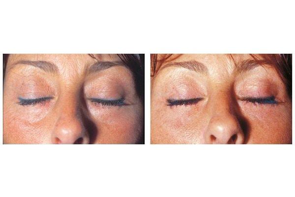 vorher nachher Beispiel einer Unterlidstraffung, mit Entfernung von Tränensack und Augenringkorrektur