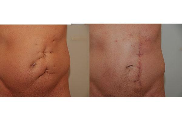 Vorher Nachher Beispiel einer Narbenkorrektur am Bauch.