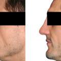 Beispiel einer Sattelnase. Korrektur mit Rippentransplantat. Wiederherstellung des Profils und Vergrößerung des Projektion.
