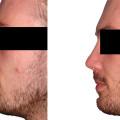 Etwas angehobene Wurzel, Höckerabtragung, Verlängerung der Nase, Verkleinerung des Nasolabialwinkels, Verringerung der Projektion.