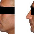Beispiel einer Spannungsnase. Korrektur des Nasenhöckers, Korrektur der Nasenspitze und Korrektur des Septums.
