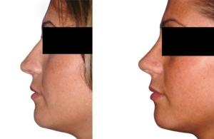 zwei Voroperationen :: Höckerabtragung, Bildung eines leichten Schwunges, Anhebung und Verschmälerung der Nasenspitze.
