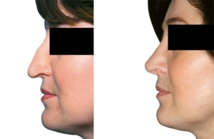 Höckerabtragung, Begradigung der Nase, Korrektur der Flügelknorpel, Anhebung der Nasenspitze