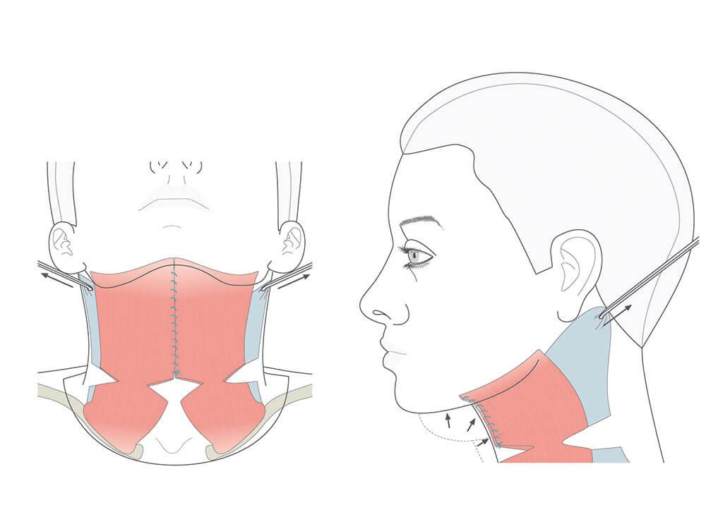 Durch ein Stirnlifting werden Stirnfalten beseitigt und die Augenbrauen angehoben.