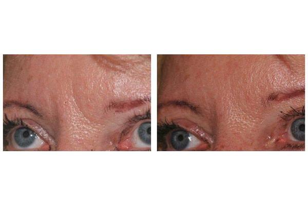 Botox zur Behandlung der Zornesfalten