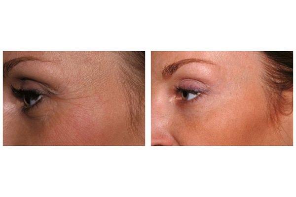 Botox zur Behandlung der Krähenfüße