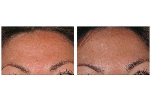 Botox zur Behandlung von Stirnfalten