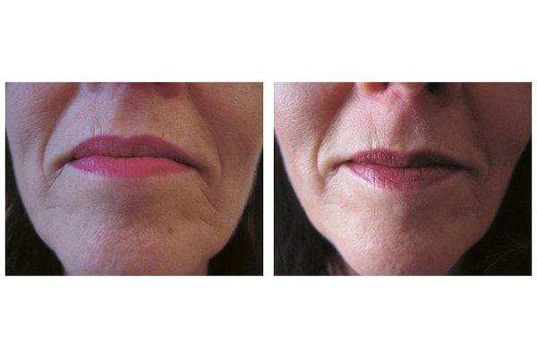 Botox zur Behandlung hängender Mundwinkel