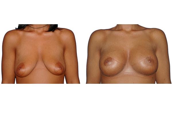 Bruststraffung Mit Implantaten R225ml L250ml