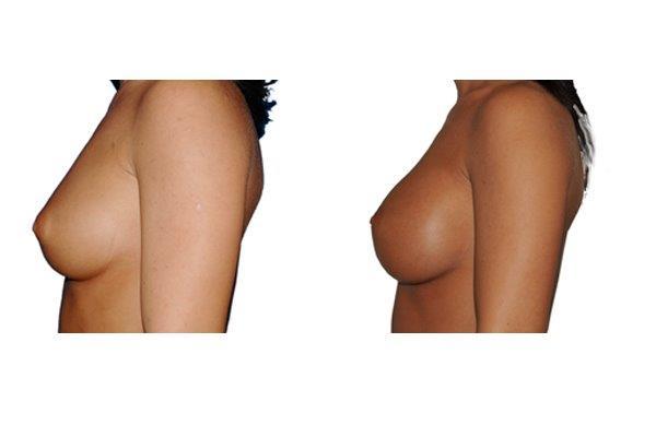 Brustvergroesserung Implantate 250 Ml Von Links