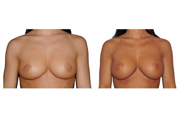 Brustvergroesserung Implantate 250 Ml Von Vorne