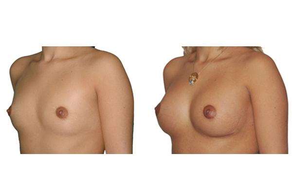 Brustvergroesserung L250 R225 1a