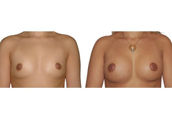 Brustvergrösserung mit Silikonimplantaten vorher nachher