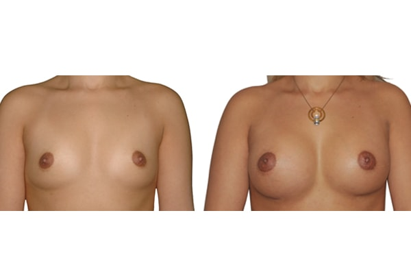 Brustvergroesserung L250 R225 1b