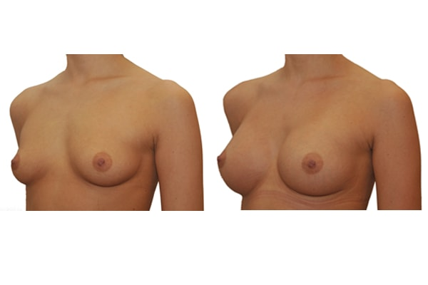 Brustvergroesserung L275 R325 1a