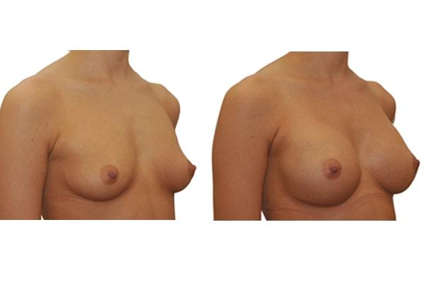 Brust op mit Implantaten vorher nachher