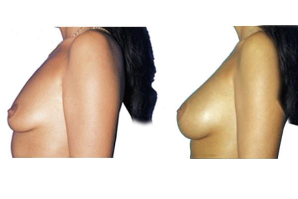 Seitenansicht einer Brustvergrößerung mit Implantaten vorher und nachher