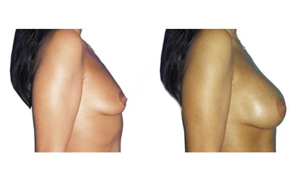 Brustvergroesserung L295ml R310ml 1b