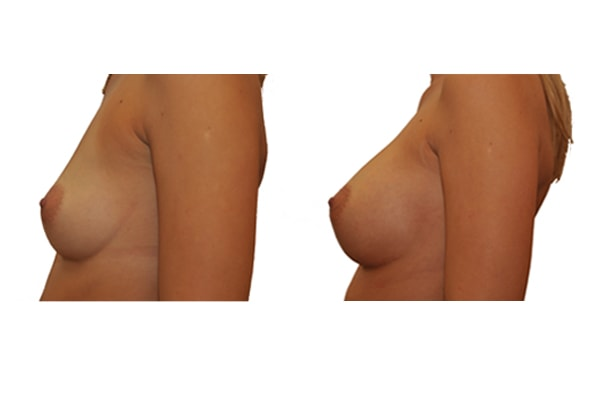 Brustvergrösserung mit Silikonimplantaten