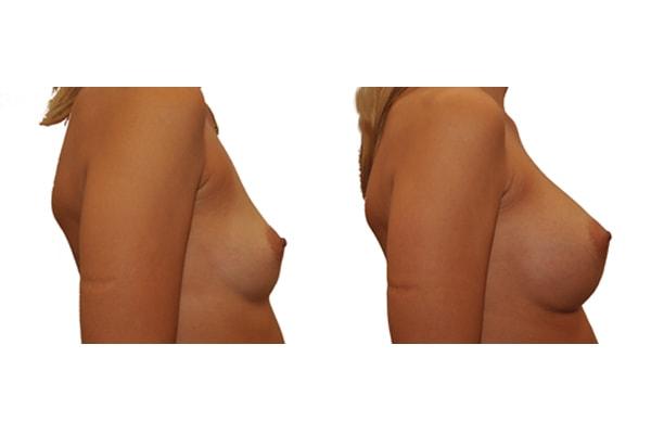 Vorher Nachher Brustimplantate