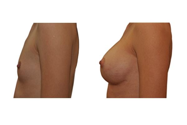 Brustvergroesserung L385 R350 1a