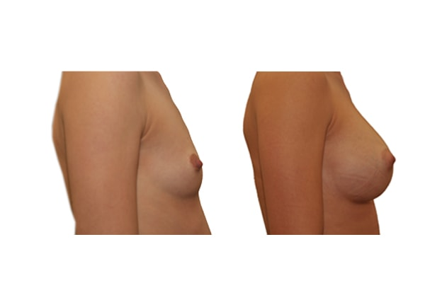 Vorher Nachher Bild einer Brustvergrösserung mit Implantaten.