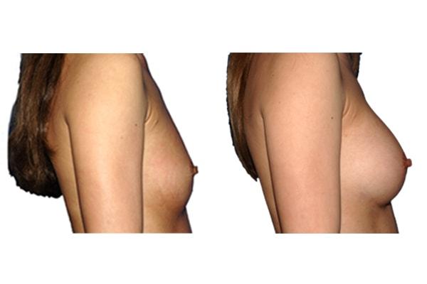 Brustvergroesserung R225 L225 1a