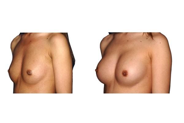 Brust op mit Implantaten.