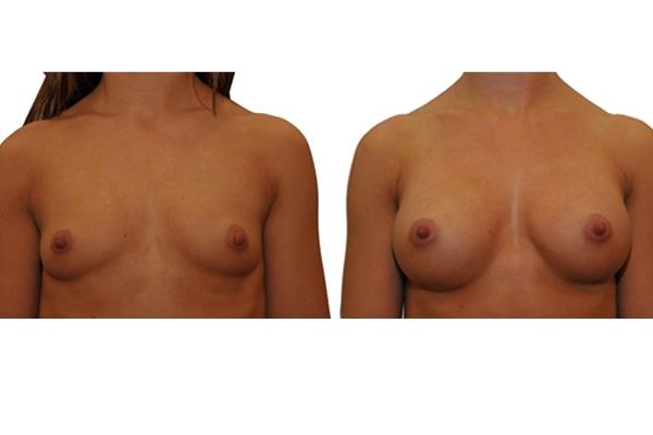 Ergebnis einer Brustvergrösserung mit Implantaten