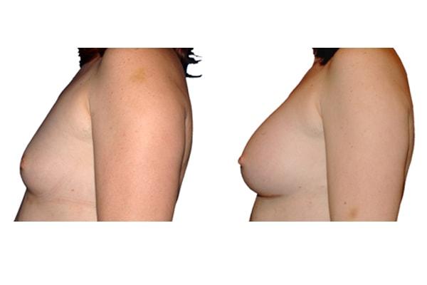 Vorher und Nacher Bild einer Brustvergrösserung mit Silikonimplantaten.