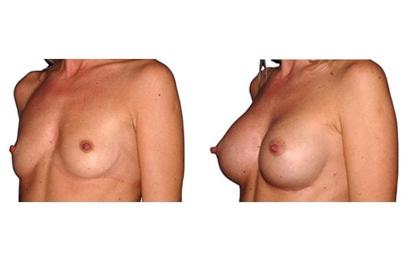Bild vor und nach einer Brustvergrösserung mit Silikonimplantaten.