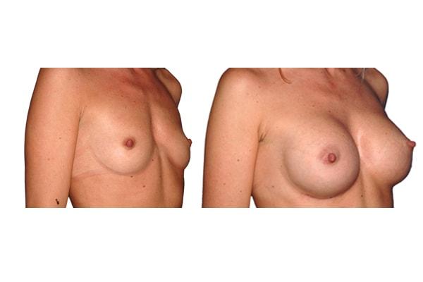 Seitenansicht vor und nach einer Brust op mit Silikonimplantaten.