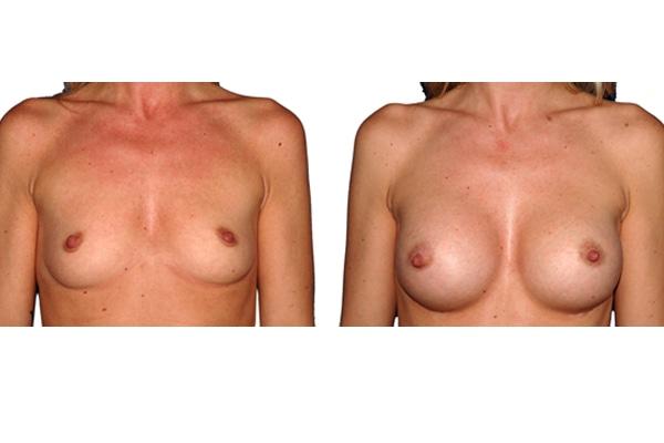Brustvergroesserung R300 L300 1c