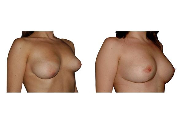 Brustvergrösserung und Symetrieherstellung mit Implantaten und einseitiger Bruststraffung.