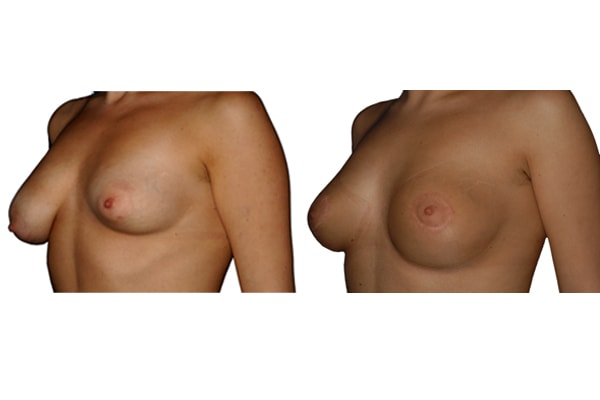 Ergebnis einer Brustvergrösserung und Symetrieherstellung mit Implantaten.