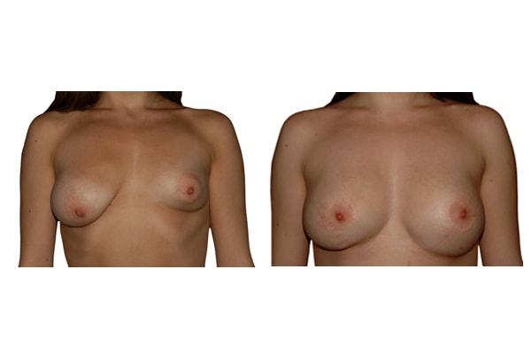 Vorher Nachher Bild einer Operation mit Brustimplantaten und  Symetrieherstellung.