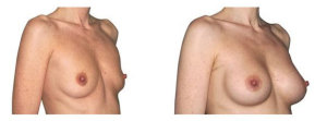 Breast augmentation with positioning of the implants under the muscle.