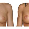 Brustvergrößerung mit Positionierung anatomischer Implantate über dem Muskel, 250g bds., Zugang über die Unterbrustfalte.