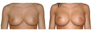 Breast enlargement with anatomical positioned implants over the muscle, 250g. Access via the breast crease.