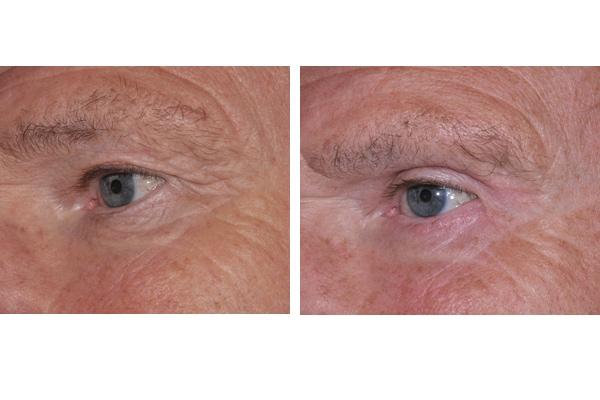 Vorher Nachher Beispiel einer Augenlidstraffung und Brauenlifting