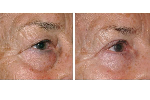 Beispiel einer Augenlidstraffung und Brauenlifting