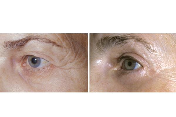 Ergebnis einer Augenlidstraffung mit Brauenlifting