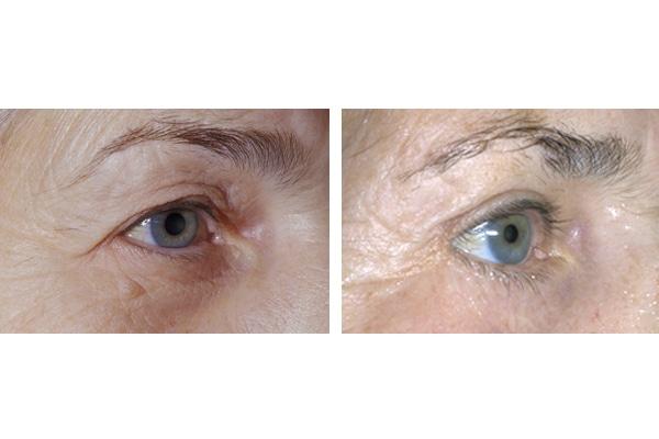 Vorher Nachher Beispiel einer Augenlidstraffung mit Brauenlifting