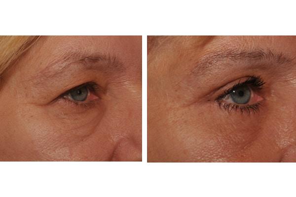 Beispiel einer Augenlidstraffung und Bruenlift