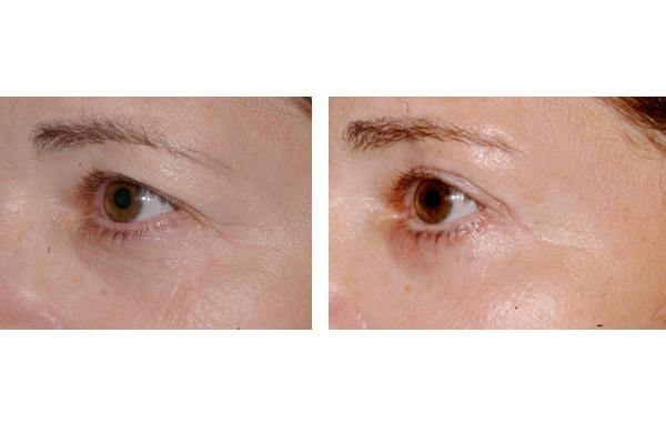 Beispiel einer Augenlidstraffung, Brauenlifting und Eigenfetttransplantation