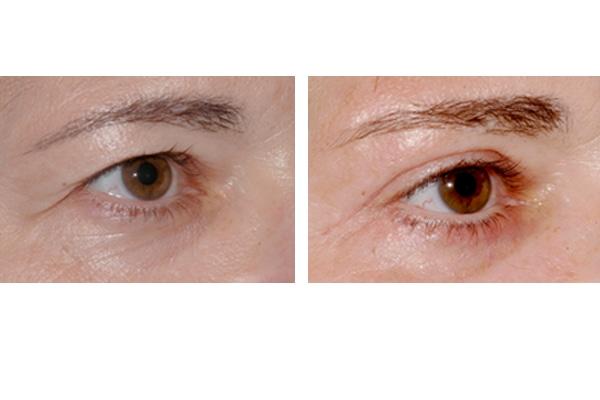Ergebnis einer Augenlidstraffung und Brauenlift